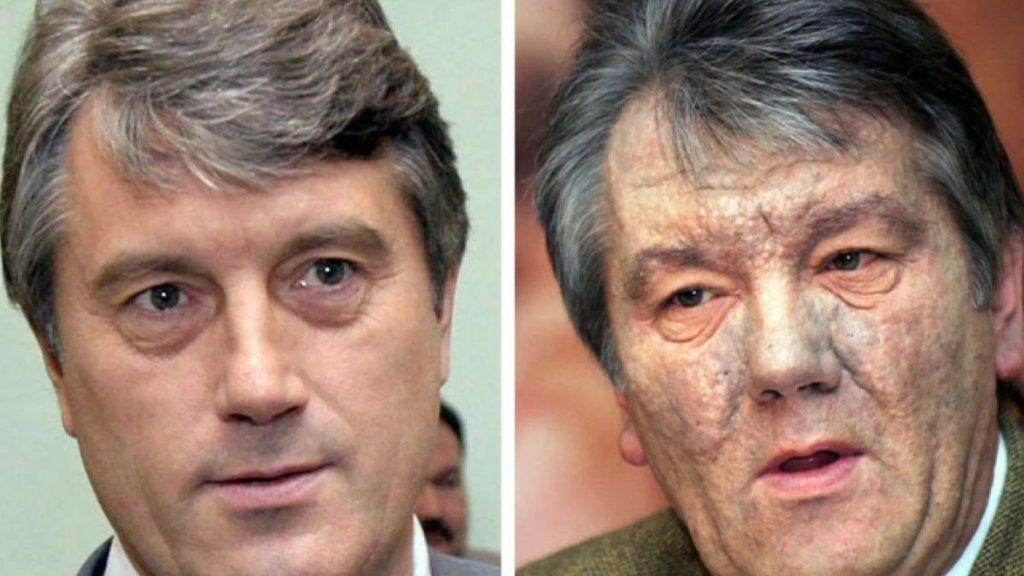 ロシアによる毒殺未遂  元ウクライナ大統領の場合