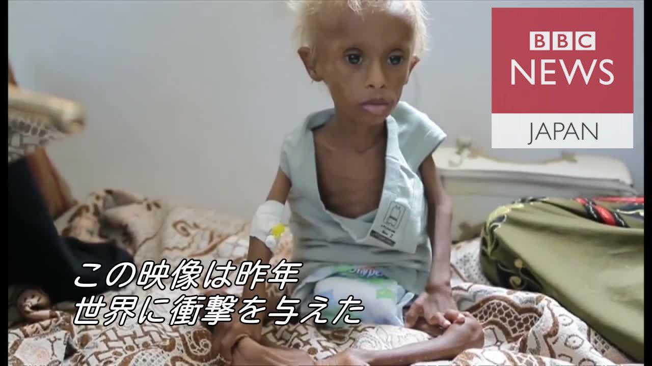 世界に衝撃を与えたイエメンの男児 あれから1年