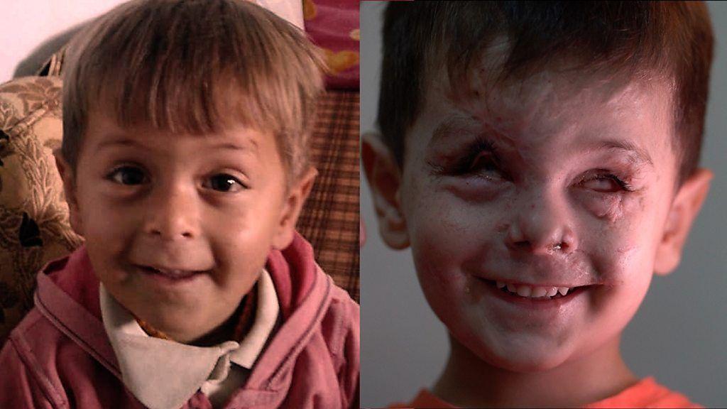空爆で視力を失った3歳児、1年たって… シリア
