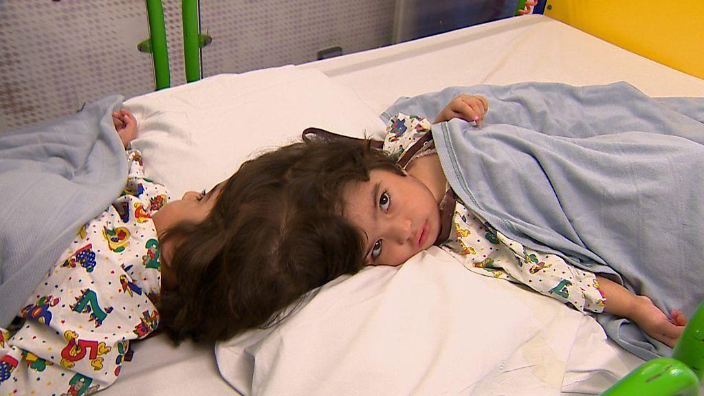 頭でつながった双子、分離手術の現場をBBCが独占取材
