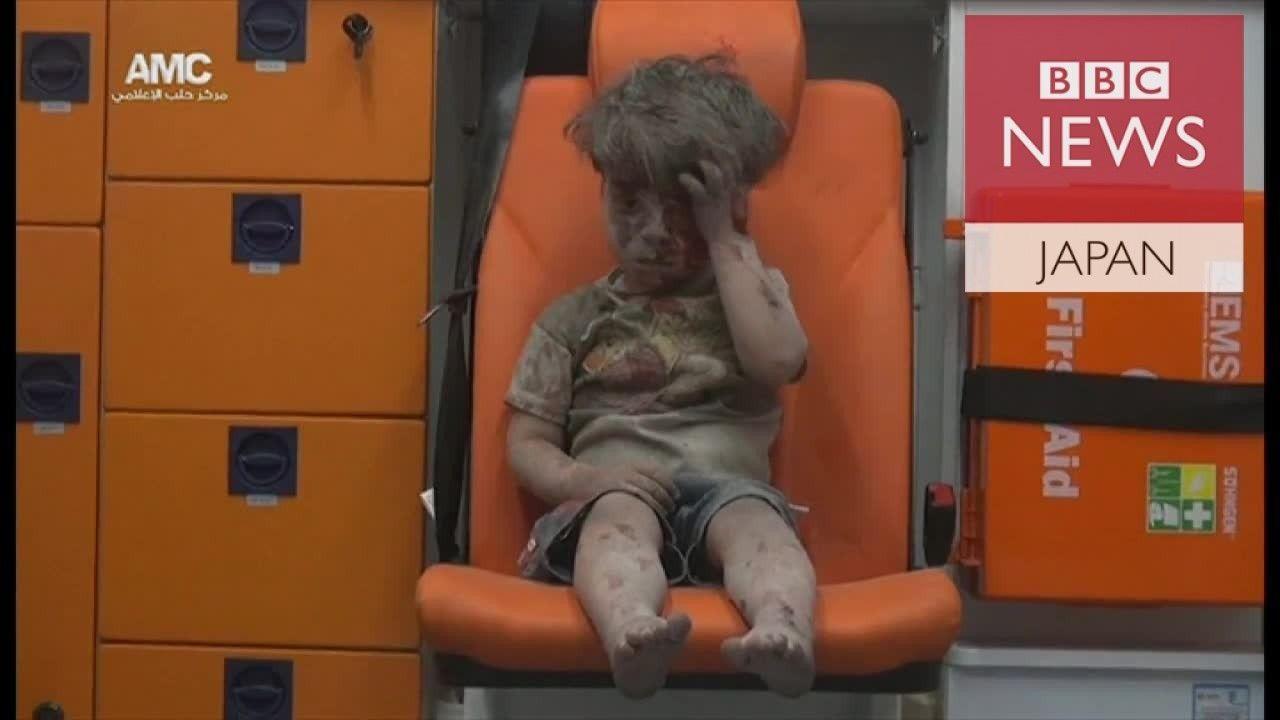 「21世紀のホロコーストだ」――シリア負傷男児手当てした医師