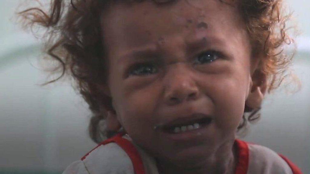 イエメン内戦、転換点に 人道危機はいっそう悪化の恐れ