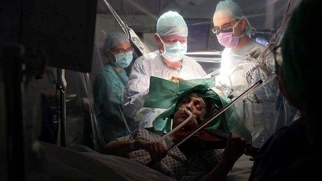 脳の手術中にバイオリンを演奏、患者の左手を守るため 英病院