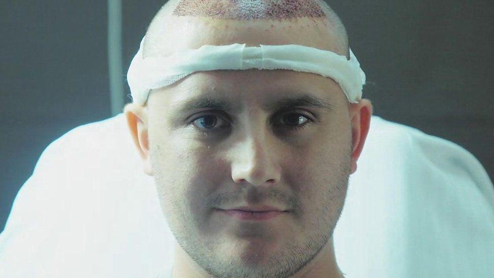 トルコの植毛ビジネス 手術を受けた英男性の体験を追う