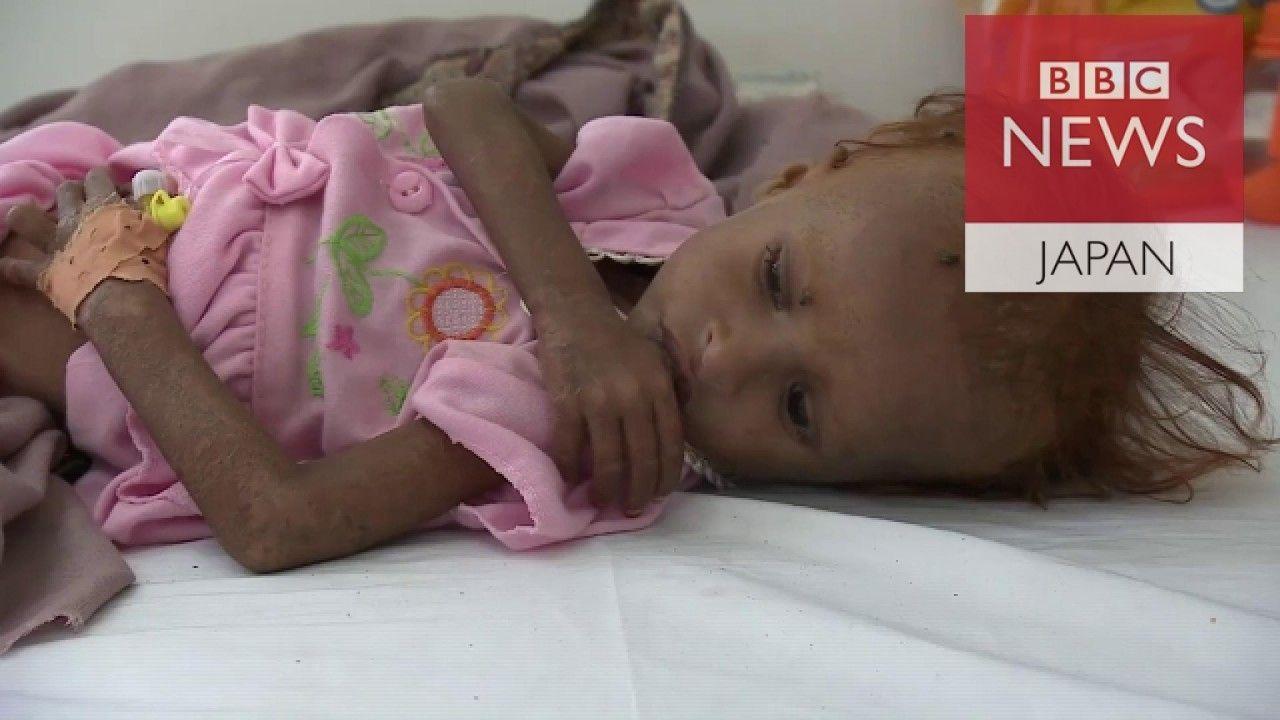 内戦で飢えるイエメンの子供たち