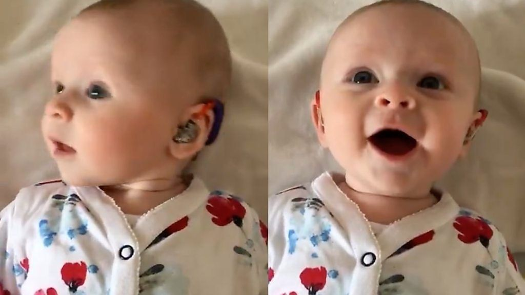 聴覚障害の赤ちゃんが補聴器をつけた瞬間