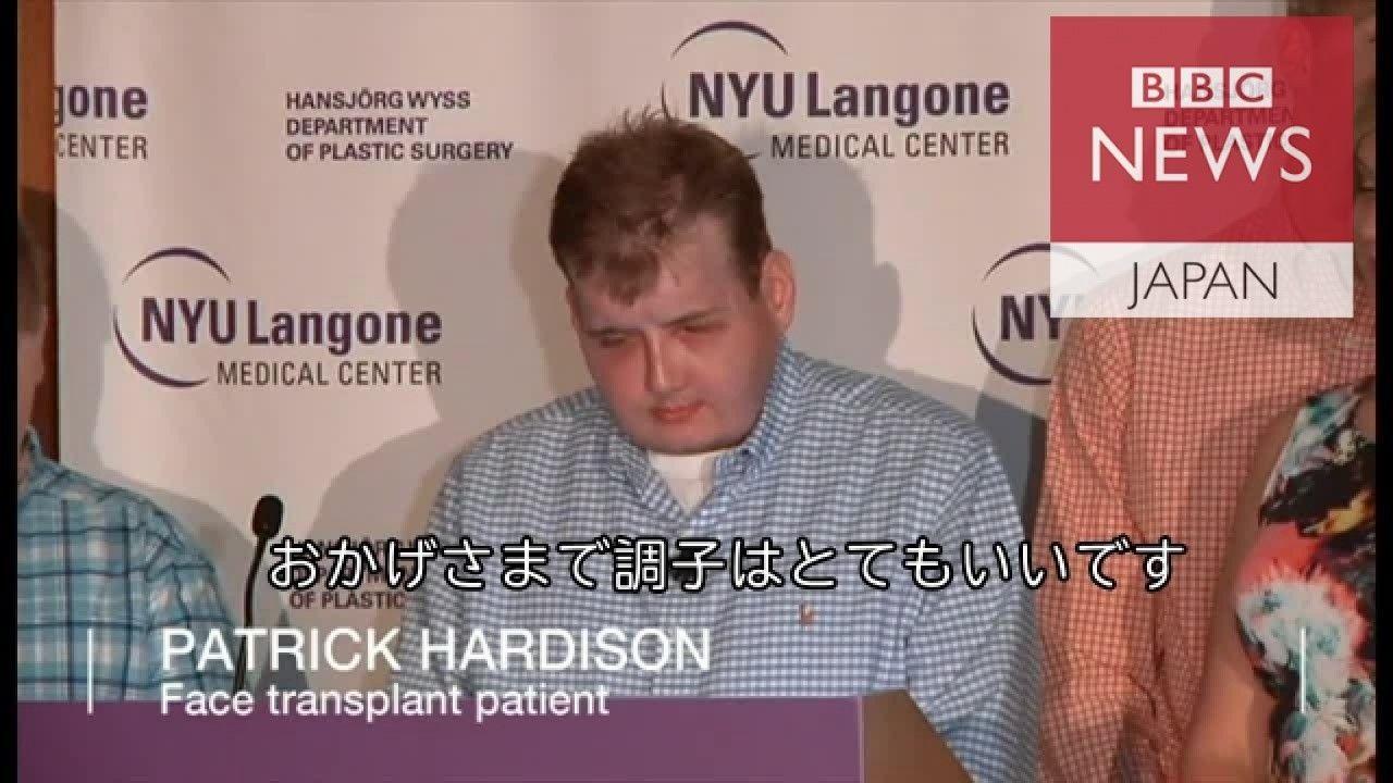 顔の移植成功、「希望はある」と米消防士
